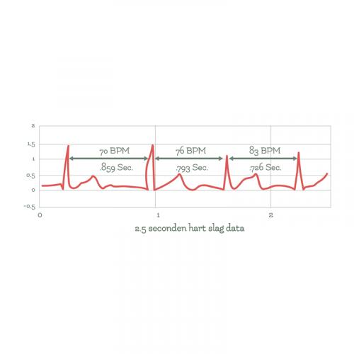 Biofeedback grafiek